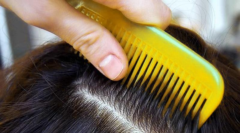 Как вывести вшей и гнид в домашних условиях в волосах